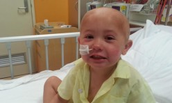 Alex has Chronic Granulomatous Disease