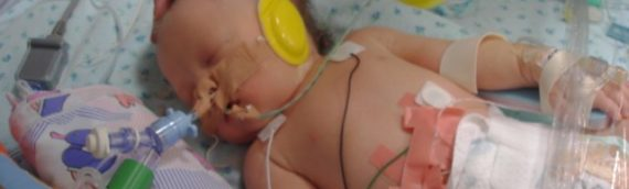 Miracle Marley's CDH Journey